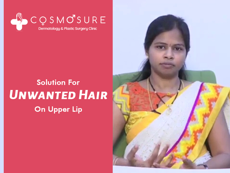permanent upper lip hair removal by Dr Swapna Priya, one of the best Skin specialist in hyderabad
