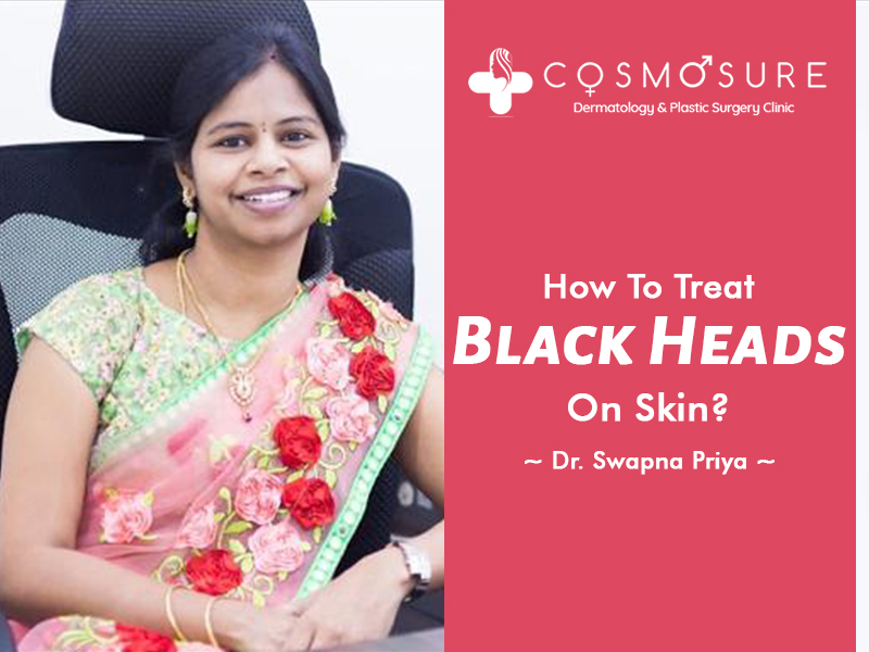 How To Treat Black Heads On Skin?