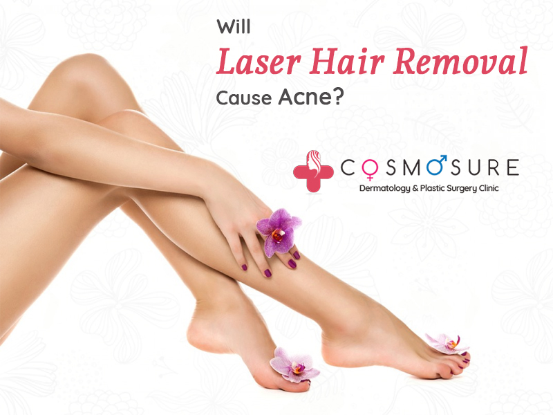 Laser hair removal treatment in hyderabad, cosmetic dermatology near me