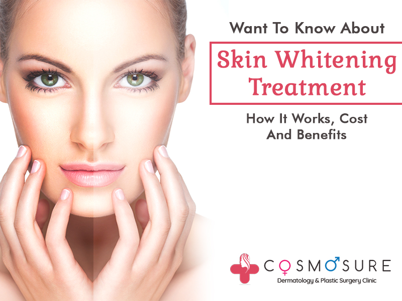 Skin Whitening Treatment: How It Works, Cost And Benefits