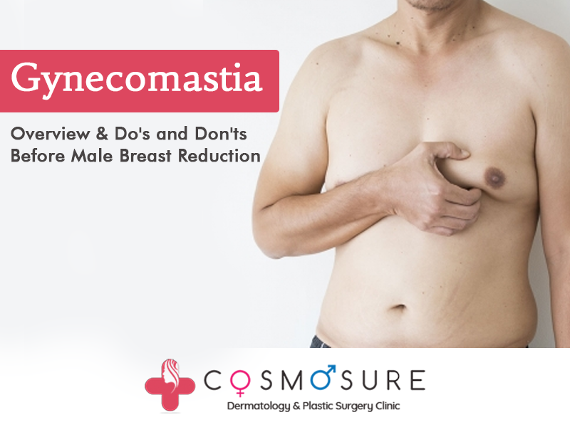 Gynecomastia Surgery follow by Dr Venkatesh babu, One of the best plastic surgeon in hyderabad