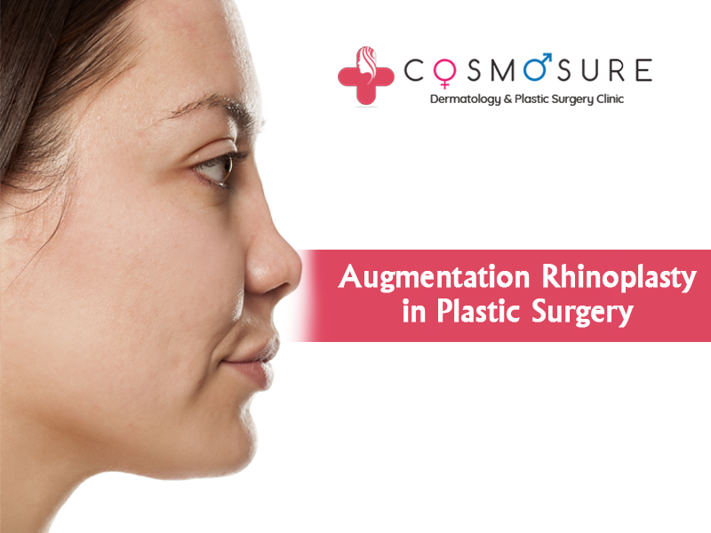 Augmentation Rhinoplasty in Plastic Surgery Treatment in Hyderabad, Best dermatologist near me