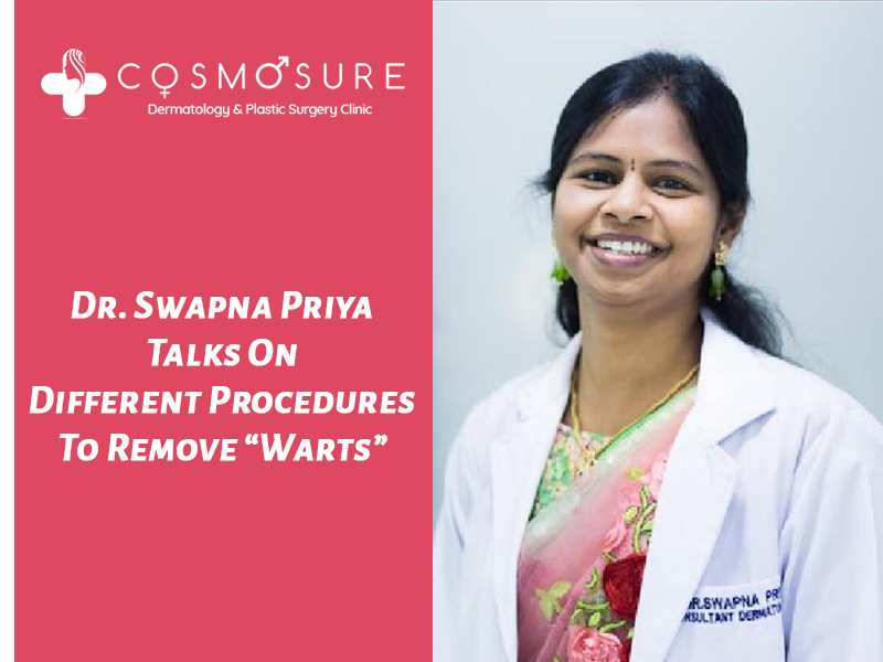 Best Warts removal treatment by Dr Swapna Priya, One of the best specialist in hyderabad