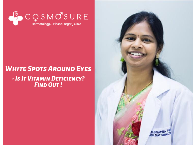 White Patches Treatment around Eyes by Dr Swapna Priya, One of the best skin doctor in hyderabad
