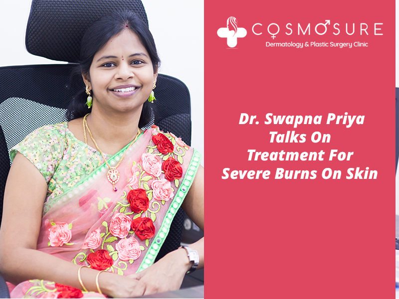 Best treatemnt for severe burns by Dr Swapna Priya, One of the experienced skin specialist in Hyderabad