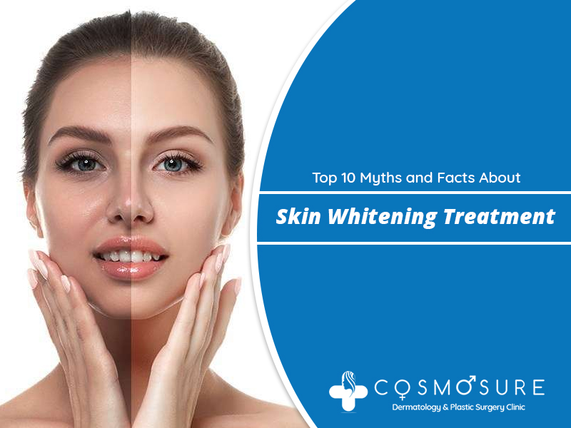 Top 10 Myths and Facts About Skin Whitening Treatment