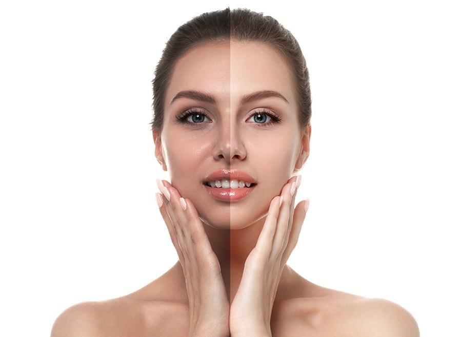 Best Skin Glow Treatment in Hyderabad, skin specialist doctor near me