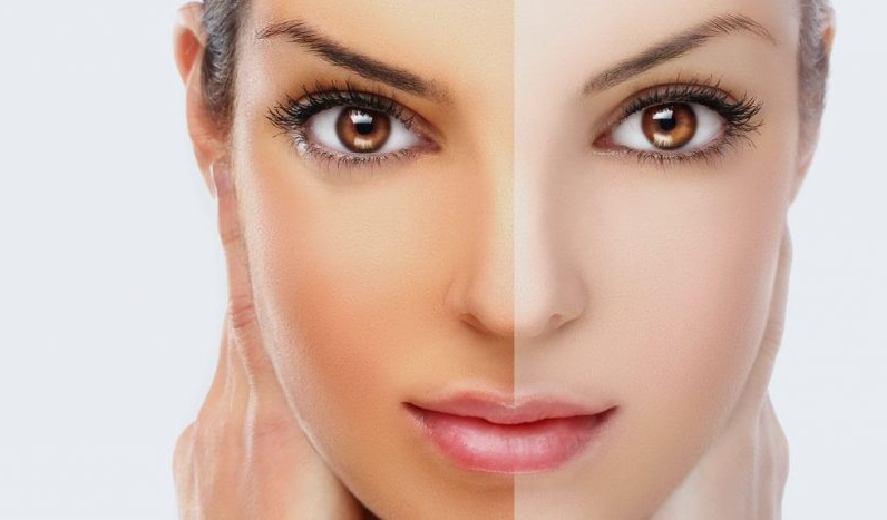 Get Brighter And Flawless Skin Tone With Skin Whitening Treatments