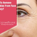 face-wrinkles_cosmosure