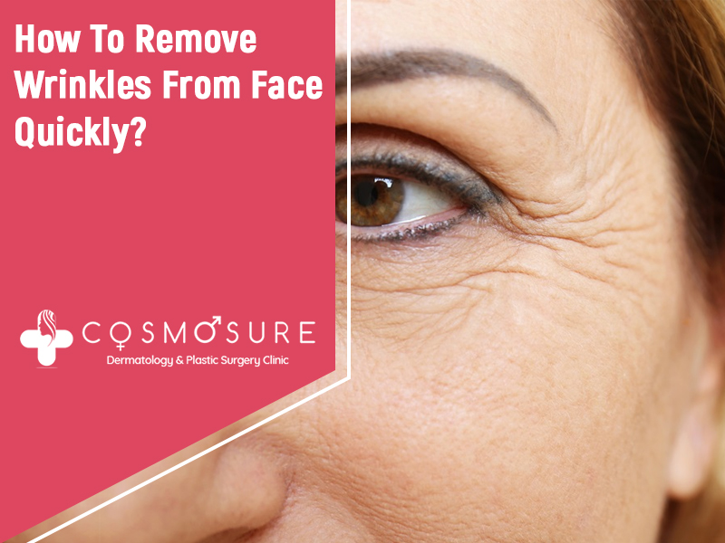 How To Remove Wrinkles From Face Quickly?