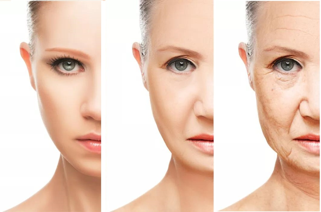 Anti Aging Treatment in Hyderabad at cosmosure clinic, One of the best hospital for skin care health in hyderabad