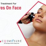 pores-on-face_cosmosure