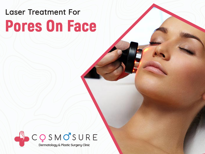 Laser Treatment For Pores On Face