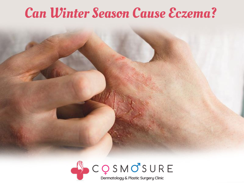Best treatment for Eczema by Dr Swapna Priya, One of the Top Dermatologist in Hyderabad