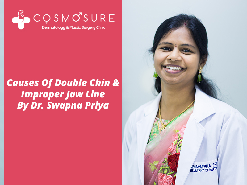 Best treatment for Double Chin by Dr Swapna Priya, One of the best skin specialist in Hyderabad