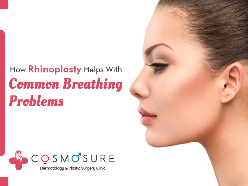 Bes Rhinoplasty surgery by Swapna Priya, One of the best dermatologist in hyderabad