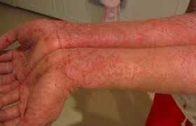 Best treatment for winter Eczema by Dr Swapna Priya, One of the best skin expert in Hyderabad