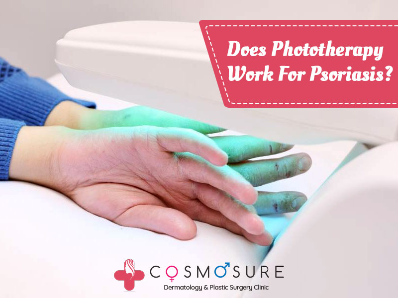 Consult for Best Phototherapy treatment for Psoriasis by Dr Swapna Priya, One of the best Dermatologist near me Hyderabad