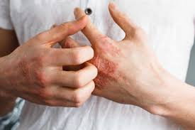Best Eczema treatment by Dr Swapna Priya, One of the best skin doctor in Hyderabad