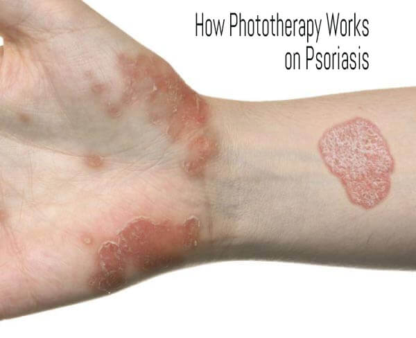 Best Psoriasis Treatment by Dr Swapna Priya at Best cosmetic clinic in hyderabad