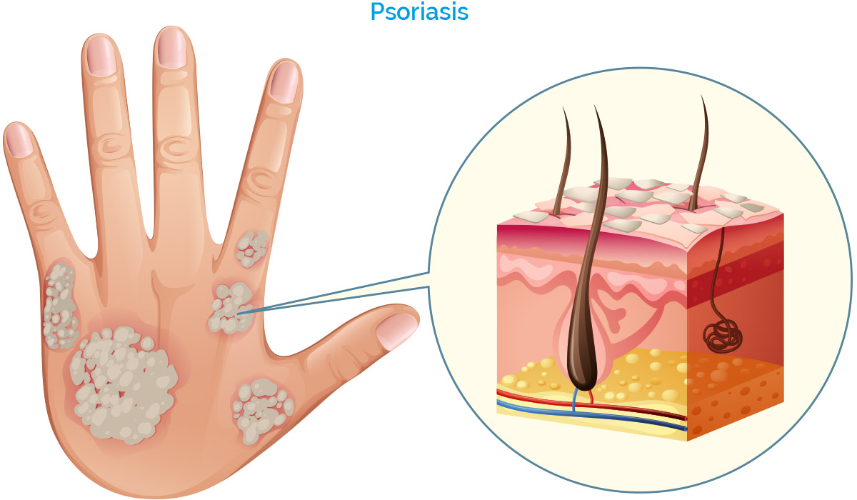 Get today Phototherapy Procedure for Psoriasis by Dr Swapna Priya, One of Best skin doctor in Hyderabad