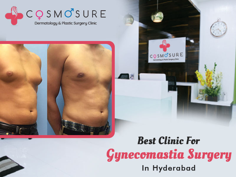 Best treatment for Gynecomastia at Cosmosure clinic, One of the best skin centre in Hyderabad
