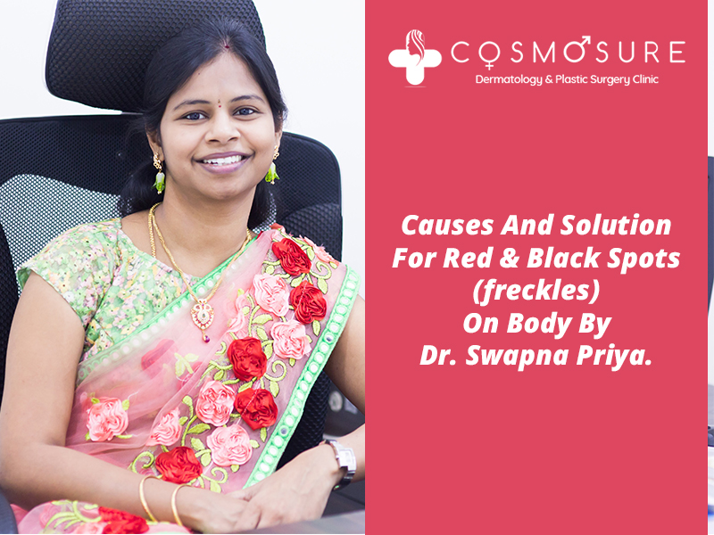 Best treatment for skin red and black spots by Dr Swapna Priya, One of the best skin specialist in Hyderabad