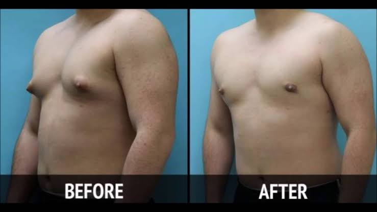 Best Result Oriented Gynecomastia surgery at Cosmosure clinic, One of the best skin health centre in Hyderabad