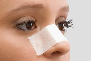 Recovery suggestions After Rhinoplasty by Dr.Sanjeev Sasmith. B, One of the best skin specialist in Hyderabad