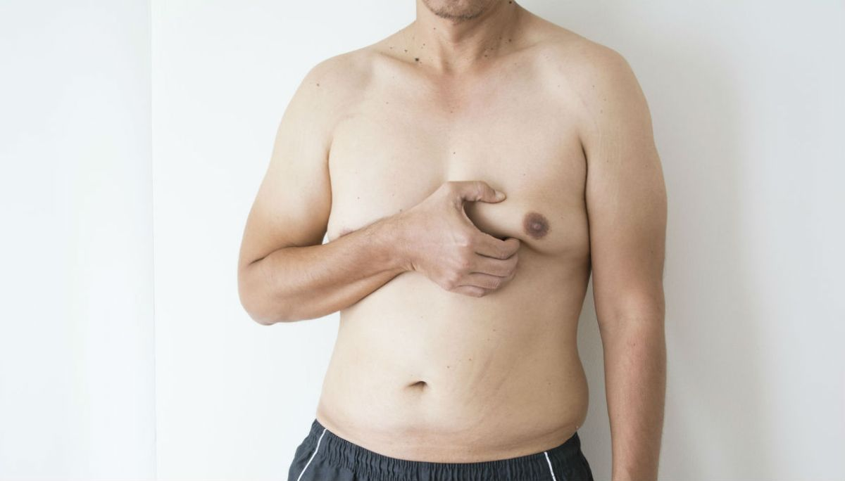 Best Gynecomastia surgery at Cosmosure clinic, One of the best skin care hospital in Hyderabad