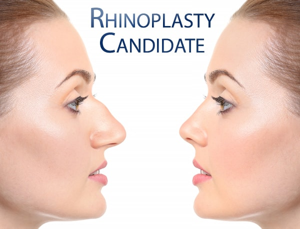 Best treatment for Nose reconstruction by Dr Swapna Priya, One of the Top Dermatologist in Hyderabad