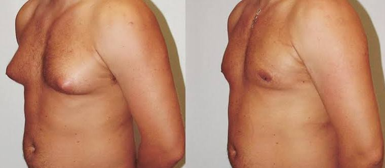 Best Gynecomastria surgery at Cosmosure clinic, One of the best skin care hospital in Hyderabad