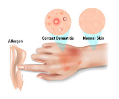 Winter skin Rashes treatment by Dr Swapna Priya, One of the best skin specialist in Hyderabad