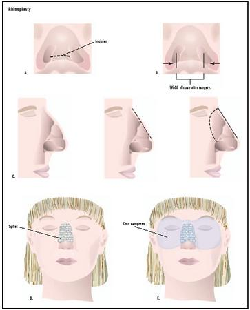 Best Nose Reshaping surgery by Dr.Sanjeev Sasmith. B, One of the best skin care hospital in Hyderabad