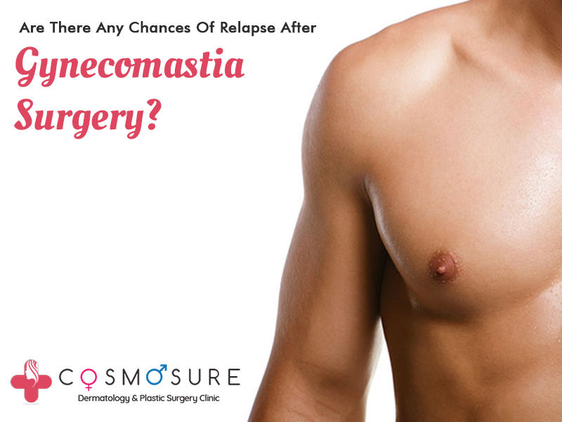 Get today Best Gynecomastia Surgery in Hyderabad, best skin specialist in hyderabad near me