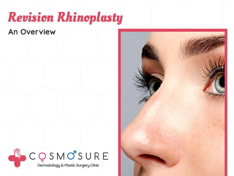 best treatment for Revision Rhinoplasty by Dr Swapna Priya, One of the Best Skin Doctor in Hyderabad