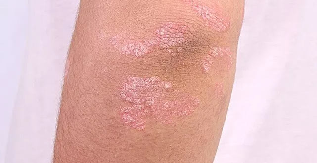 Best treatment for Psoriasis by Dr Swapna priya, One of the best skin doctor in hyderabad