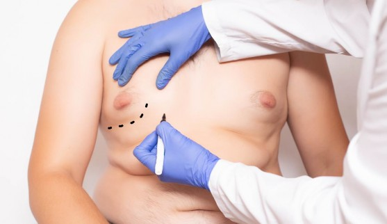 Best Gynecomastia Surgeon in Hyderabad, best clinic for skin diseases  near me