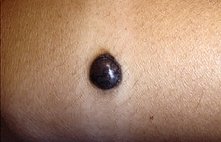 mole removal treatment in hyderabad by Dr Swapna Priya, One of the best skin specialist in Hyderabad