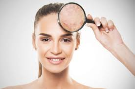 best skin lightening treatment for hyperpigmentation by Dr Swapna Priya, One of the Best Skin Specialist in Hyderabad