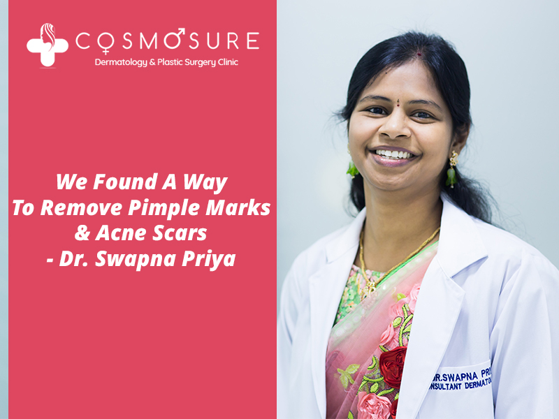 Get now Pimple Marks and Acne Scars removal by Dr Swapna Priya, One of the best skin doctor in Hyderabad