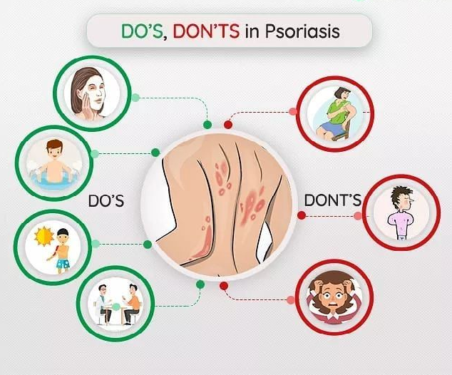 Book an Appointment with Dr Swapna Priya for Best Treatment for All types of Psoriasis in Hyderabad