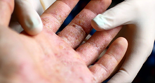 Get Appointment today with Dr Swapna Priya, One of the Best skin doctor for Pustular Psoriasis Triggers Treatment in Hyderabad