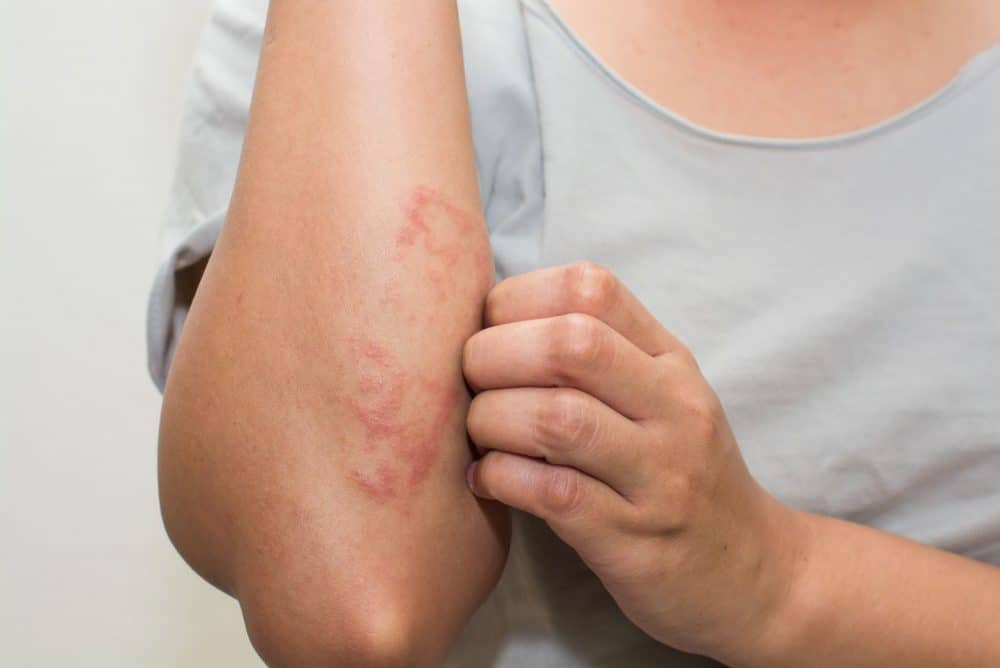 Contact today Dr Swapna Priya at Best Dermatologist for Psoriasis Treatment in Hyderabad