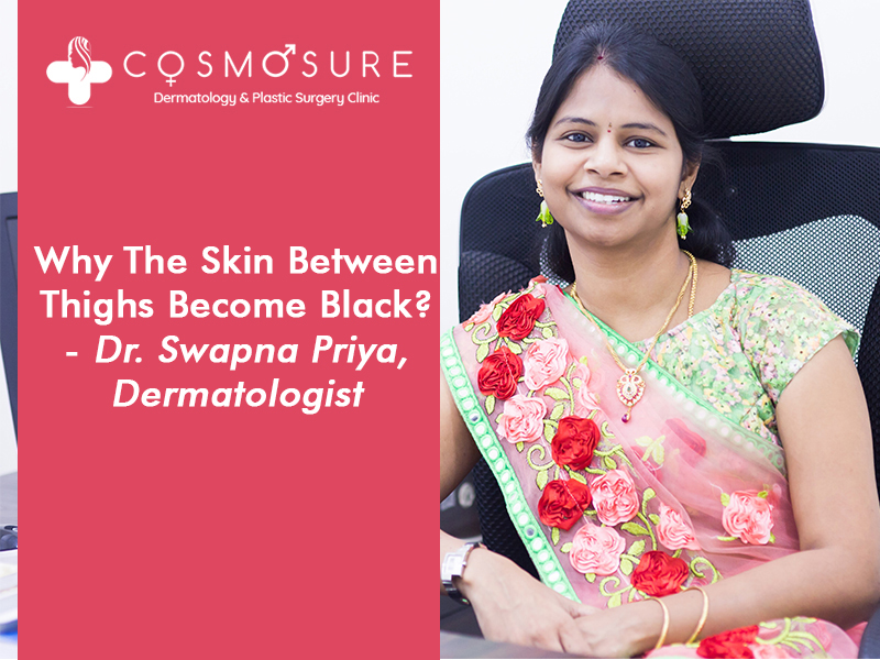 All types of Doubts about Skin Thighs Become Black, Cleared by Dr Swapna Priya, Best Skin Specialist in Hyderabad