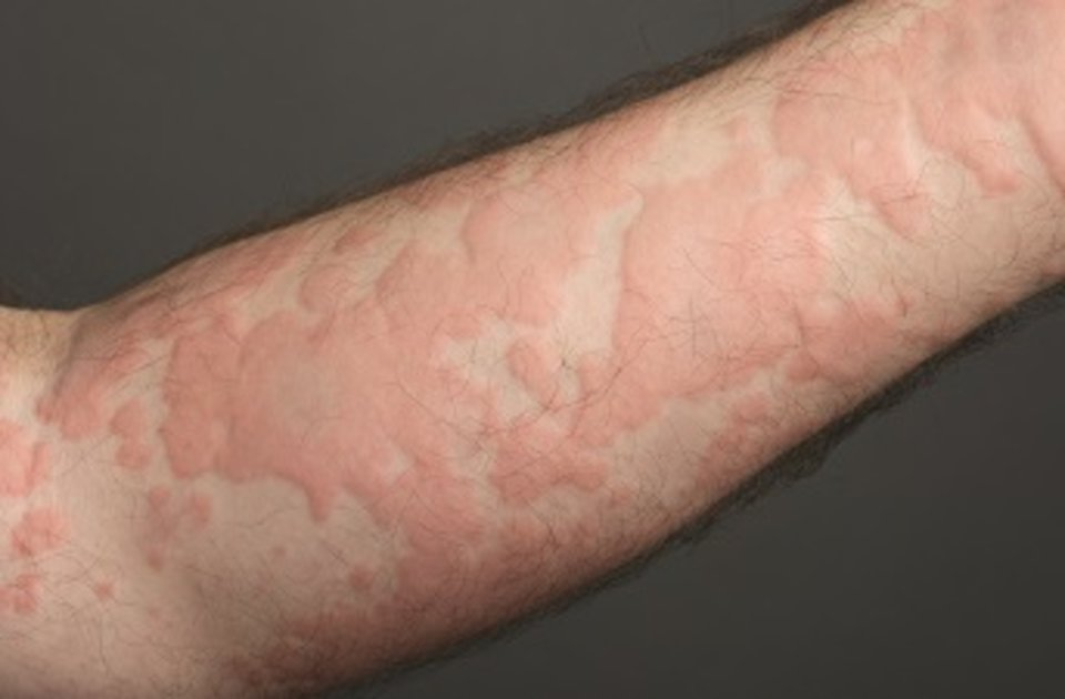 Book Appointment today with Dr Swapna Priya, Best Dermatology Doctor for Urticaria treatment in Hyderabad,