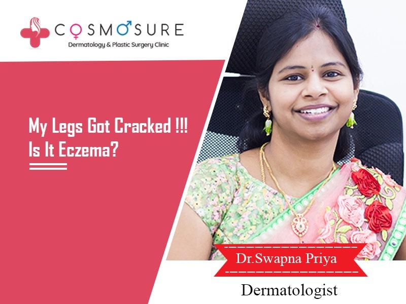 My Legs Got Cracked !!! Is It Eczema? – By Dr. Swapna Priya, Dermatologist