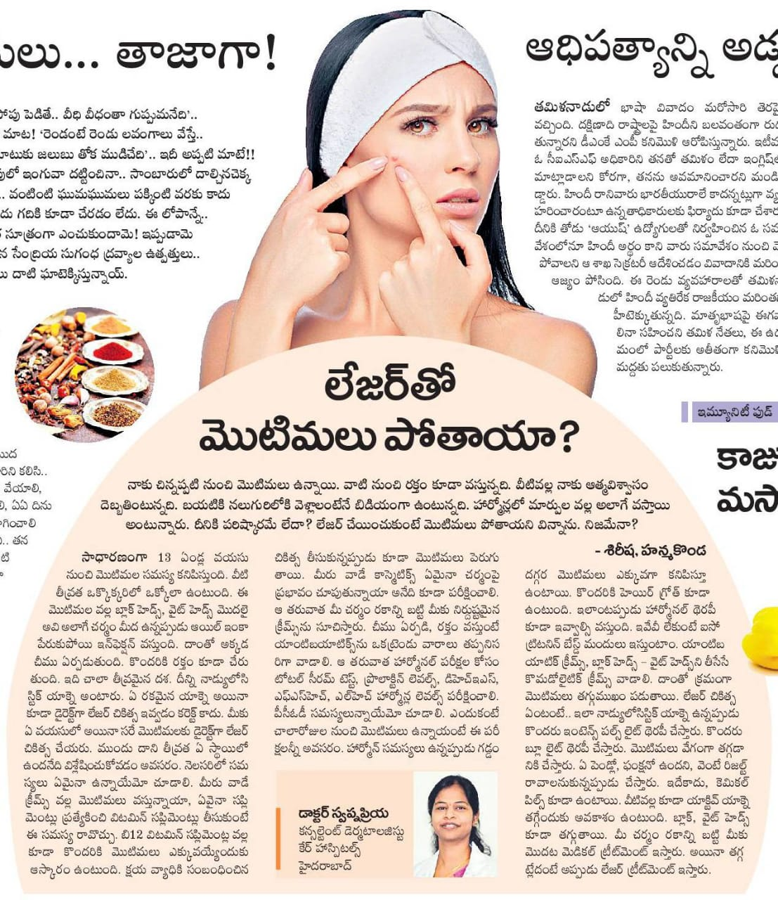 best laser Treatment for Pimples by Dr. Sania Riaz, One of the best Dermatologist in Hyderabad