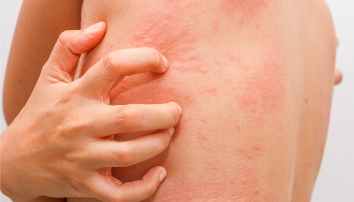 Best Treatment for Urticaria by Dr Swapna Priya, One of the best Skin specialist Near me