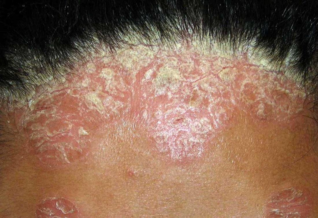 Best Scalp Psoriasis Treatment by Dr Swapna Priya, one of the best Dermatologist in Hyderabad